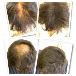Fejtető sűrítés instant hajjal